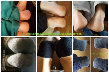before and after pictures showing how many of us have short legs and a picture showing the correction